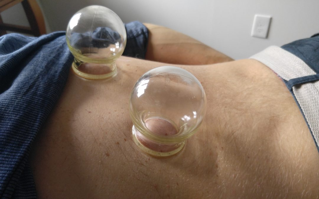 Cupping Therapy – It Ain't Pretty but it Works